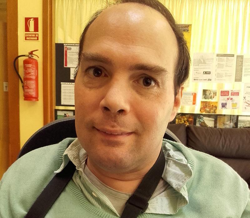 Albert Dalley Lobo